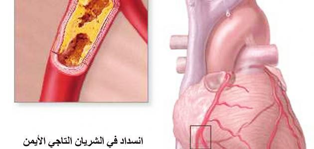 صورة اعراض مرض القلب , ازاي اعرف اني عندي القلب 4229 1