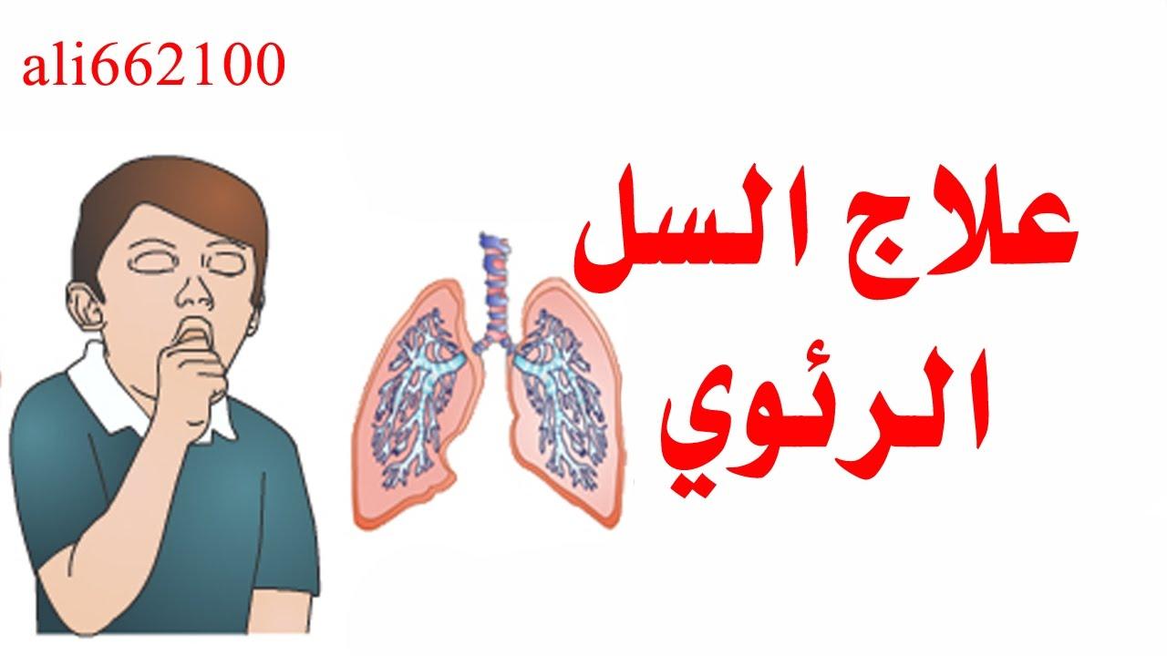 صورة علاج مرض السل , التعرف على هذا المرض اللعين 4626 2
