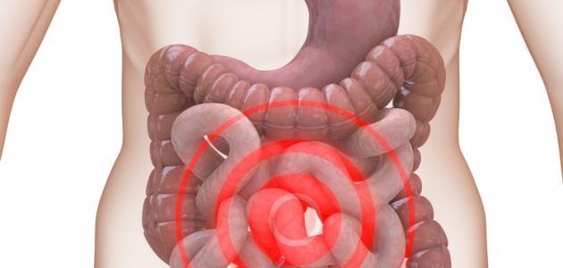 صورة اعراض تشنج القولون , أسباب تؤدي إلى تشنجات الأمعاء 6550 2