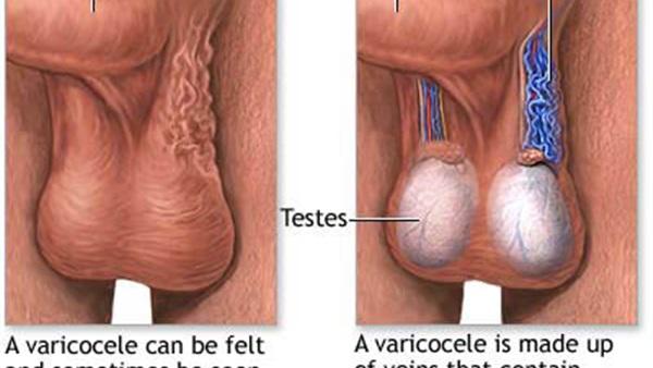 صورة اعراض الدوالي الخصية , علامات الاصابة بالدوالي 6832 1