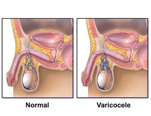 صورة اعراض الدوالي الخصية , علامات الاصابة بالدوالي 6832