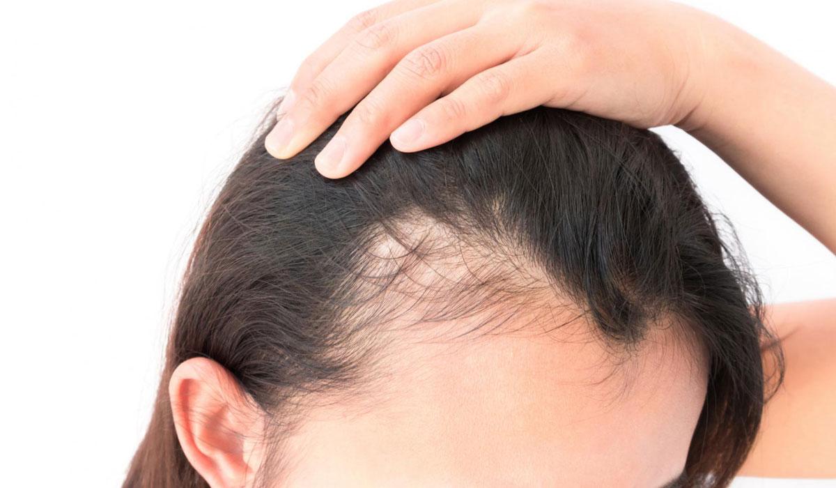 صورة علاج تساقط الشعر , لو شعرك بيقع تعالى هنا 1577 1