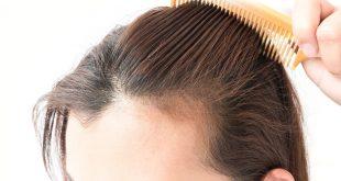 صورة علاج تساقط الشعر , لو شعرك بيقع تعالى هنا