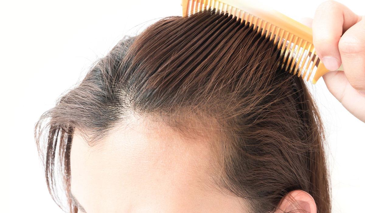 صورة علاج تساقط الشعر , لو شعرك بيقع تعالى هنا 1577