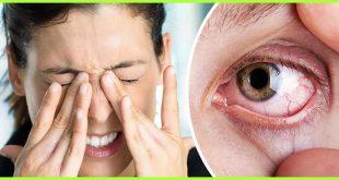 ماهي اعراض جفاف العين , علامات الجفاف في العيون