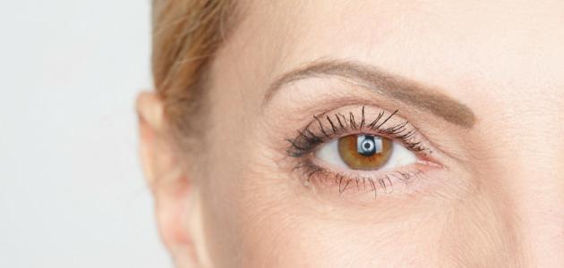 صورة علاج الذبابة الطائرة في العين بالاعشاب , كيفية علاج ذبابة العين 6521 2