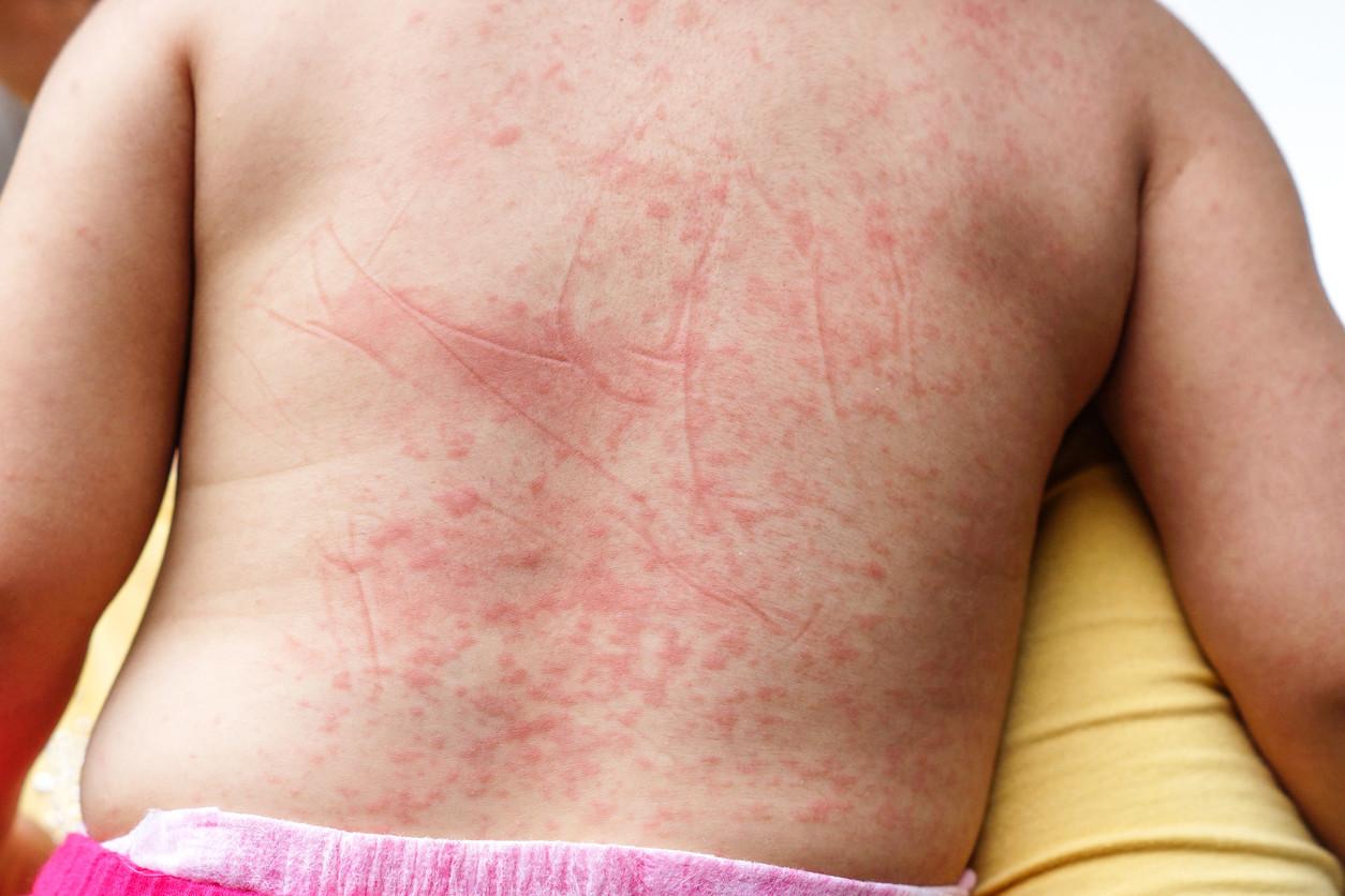 صورة تعرف على اعراض هذا المرض الخطير , اعراض الحمى الروماتيزمية 7197 2