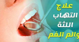 افضل الطرق الطبيعيه علاج اللثه الملتهبه , علاج اللثة الملتهبة
